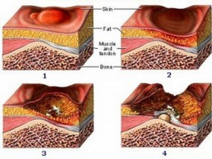 Progresión de una escara o úlcera por presión