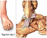 vendido en todo el mundo el más nuevo nuevas imágenes de Tobilleras para esguinces de tobillo - Blog de ortopedia de ...