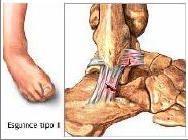nueva productos nuevo concepto seleccione para el último Tobilleras para esguinces de tobillo - Blog de ortopedia de ...
