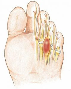 neuroma-morton-lesion