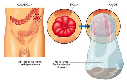 Colostomía - estoma - bolsa de colostomía