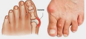 El juanete es la subluxación de la primera articulación metatarso-falángica