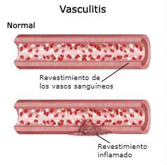 vasculitis