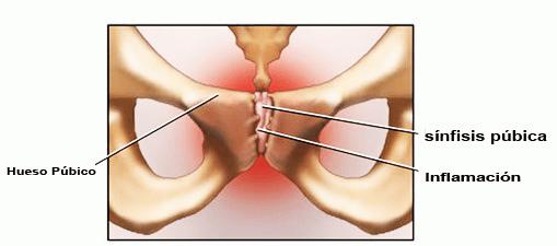 adoptar pautas para la práctica clínica del dolor en la cintura pélvica